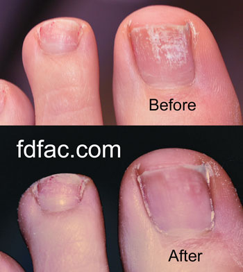 Not all toenail fungus is created equal dr jenny sanders shoe blog wsobeforeafter sciox Gallery